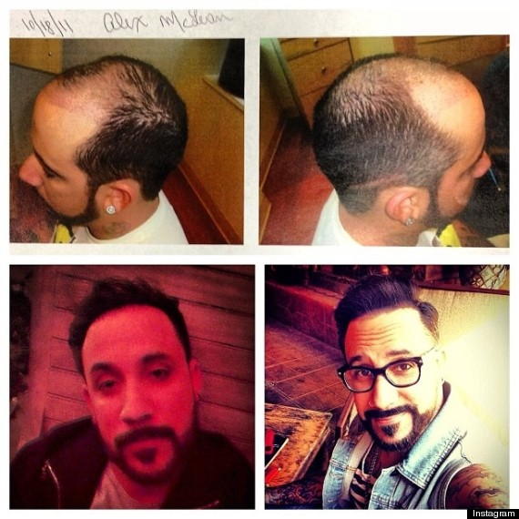o-AJ-MCLEAN-HAIR-PLUGS-570